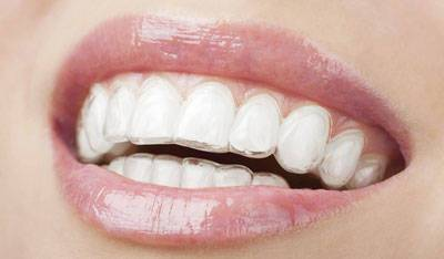 Fixing Bite Occlusion With Invisalign